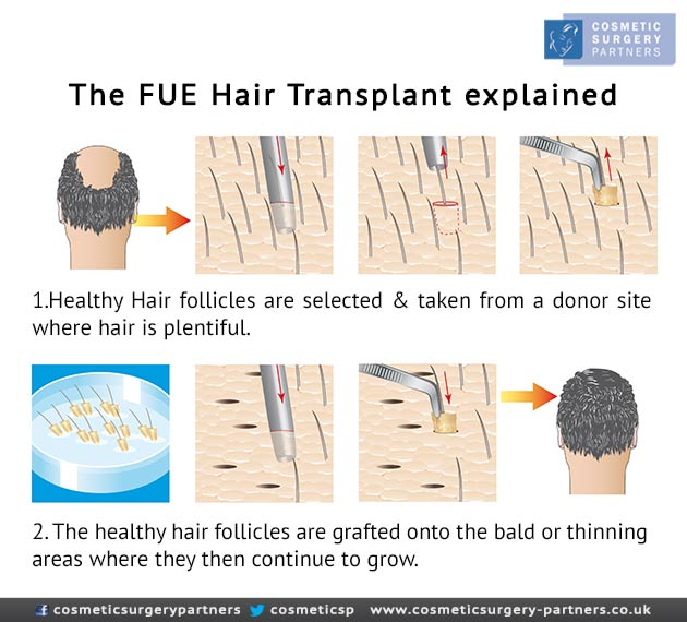 Hair transplant surgery explained FUE
