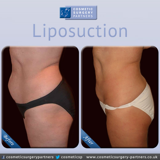 Cosmetic Surgery Partners Liposuction