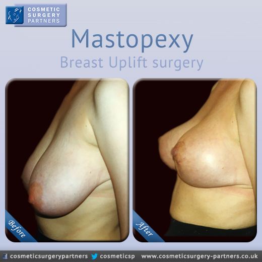Mastopexy breast surgery pre post photo