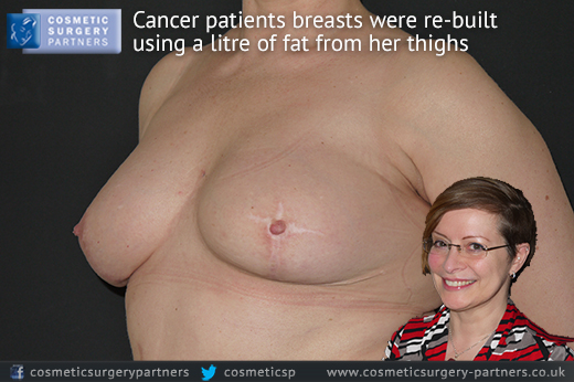 cancer patient breast reconstruction surgery london