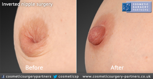 Inverted nipple surgery before and after photo