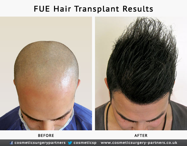 FUE hair transplant before after results