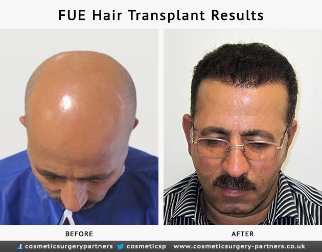FUE hair transplant patient photos before and after
