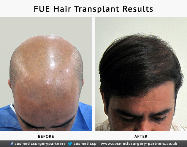 Hair transplant before and after photo of patient