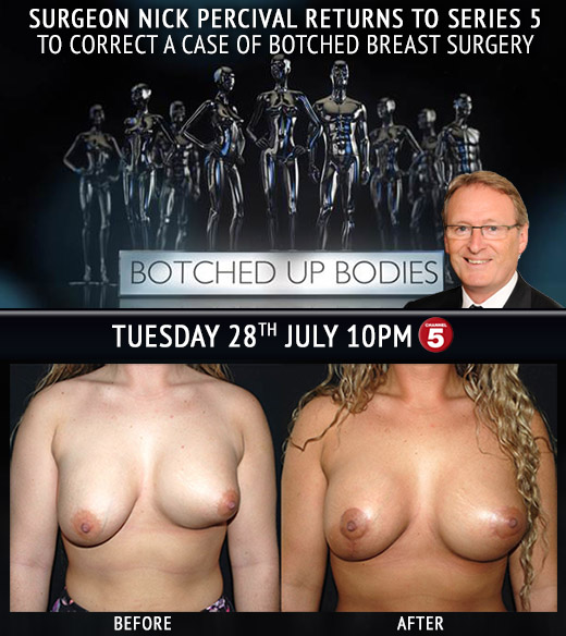 Surgeon Nick Percival from Botched Up Bodies