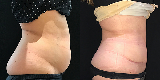 abdominoplasty.jpg