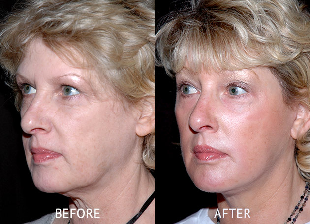 Face lift patient at before and after at cosmetic surgery London oblique view