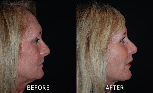 face lift at cosmetic surgery partners before and after right side view