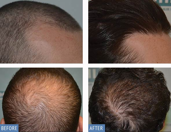 DHI Hair transplant before and after photos of male patient