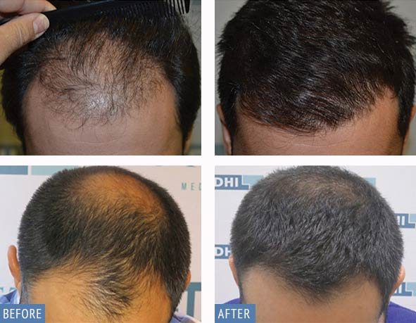 DHI Hair Transplant for men result photos