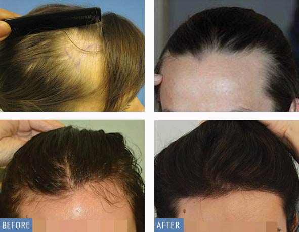 DHI Hair Transplant for women result photos