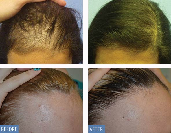 DHI Hair transplant before and after photos of female patient