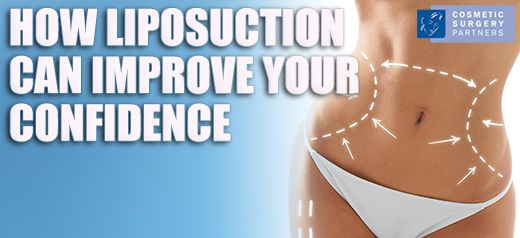 How Liposuction Can Help You Feel Confident in 2016
