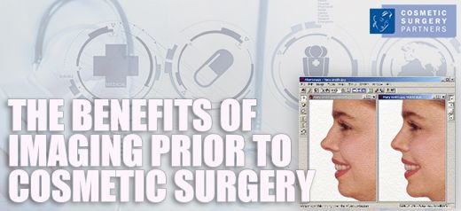 The benefits of imaging prior to cosmetic surgery