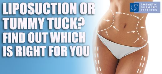 Tummy tuck vs liposuction surgery which is right for me
