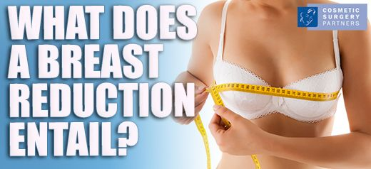 What Does Breast Reduction Surgery Entail