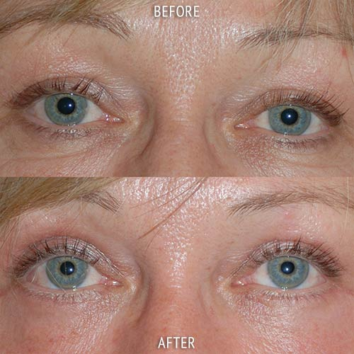 blepharoplasty surgery before and after patient results front view photo at Cosmetic Surgery Partners London