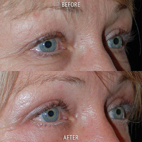 blepharoplasty surgery before and after patient results oblique angle view photo at Cosmetic Surgery Partners London