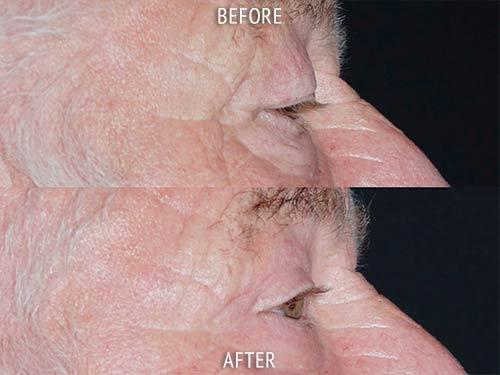 blepharoplasty surgery before and after patient results side view photo at Cosmetic Surgery Partners London