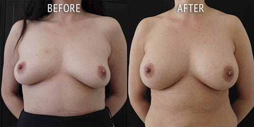 breast augmentation surgery before and after patient results front view photo at Cosmetic Surgery Partners London