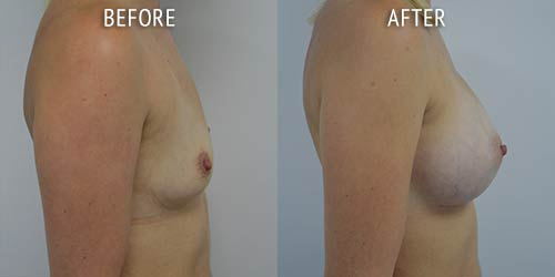 breast augmentation surgery before and after patient results side view photo at Cosmetic Surgery Partners London