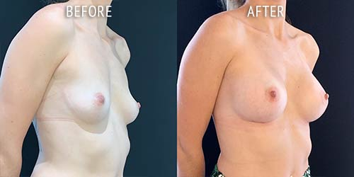 breast augmentation surgery before and after patient results oblique angle view photo at Cosmetic Surgery Partners London