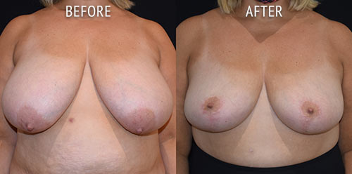breast reduction surgery before and after patient results front view photo at Cosmetic Surgery Partners London