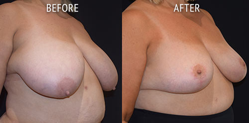 breast reduction surgery before and after patient results oblique angle view photo at Cosmetic Surgery Partners London