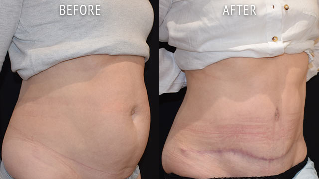 Abdominoplasty By Liaquat Verjee Before and After Photos