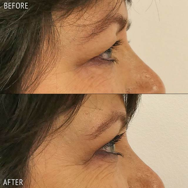 Blepharoplasty By Liaquat Verjee Before and After Photos