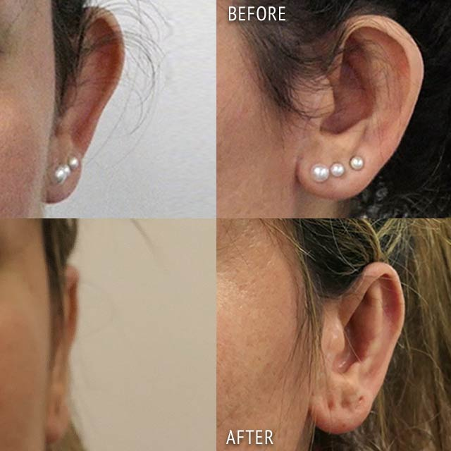 Otoplasty By Liaquat Verjee Before and After Photos