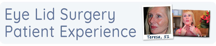 Eyelid surgery patient experience banner