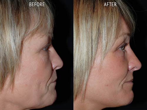 face lift surgery before and after patient results side view photo at Cosmetic Surgery Partners London