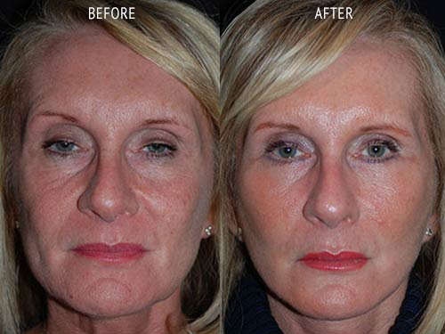 face lift surgery before and after patient results front view photo at Cosmetic Surgery Partners London