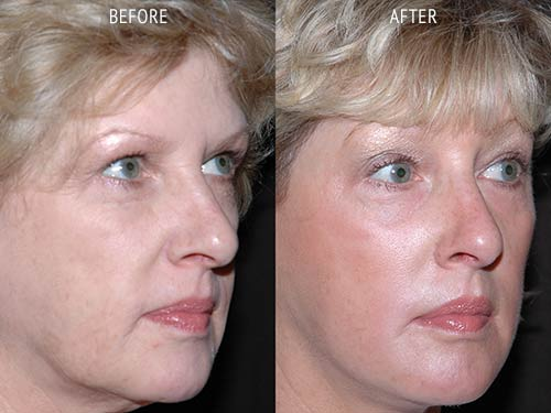 face lift surgery before and after patient results oblique angle view photo at Cosmetic Surgery Partners London