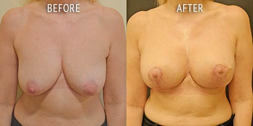 breast uplift surgery before and after patient results front view photo at Cosmetic Surgery Partners London
