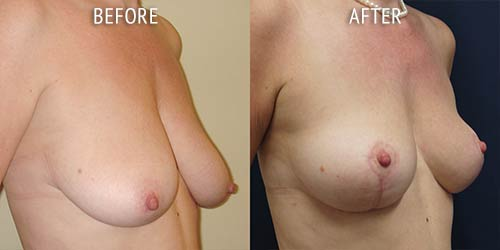 breast uplift surgery before and after patient results oblique angle view photo at Cosmetic Surgery Partners London