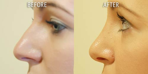 rhinoplasty surgery before and after patient results side view photo at Cosmetic Surgery Partners London