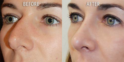 rhinoplasty surgery before and after patient results oblique angle view photo at Cosmetic Surgery Partners London