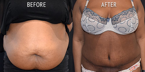 abdominoplasty surgery before and after patient results front view photo at Cosmetic Surgery Partners London