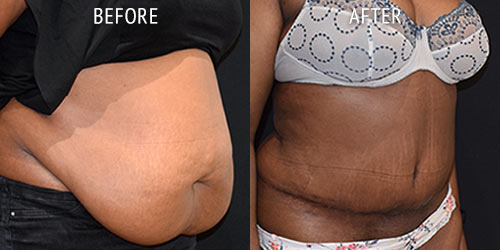 abdominoplasty surgery before and after patient results oblique angle view photo at Cosmetic Surgery Partners London