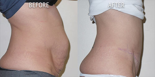 abdominoplasty surgery before and after patient results side view photo at Cosmetic Surgery Partners London